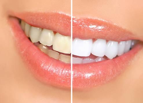 Kết quả hình ảnh cho Bọc răng sứ bằng công nghệ hiện đại