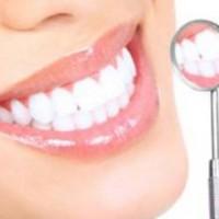 Cứu hàm răng xỉn màu bằng phương pháp bọc răng sứ
