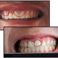 Bọc răng sứ thẩm mỹ tốt nhất TP Hồ Chí Minh