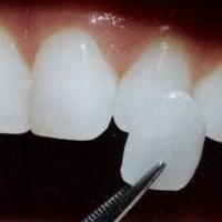 Bọc răng sứ thẩm mỹ ở đâu tốt