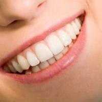 5 bước đánh răng cấy ghép implant đúng cách