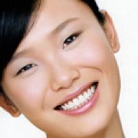 Răng trắng, cười xinh