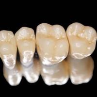 Cách khắc phục các bệnh về răng miệng sau khi bọc răng sứ