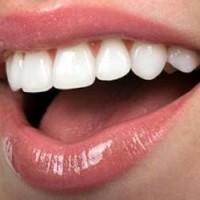 Tìm lại nụ cười rạng rỡ nhờ bọc răng sứ thẩm mỹ