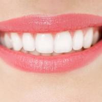 Tẩy trắng răng tại nhà làm sao cho đúng