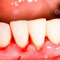Chảy máu nướu răng: đừng xem nhẹ