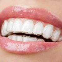 Hậu quả niềng răng sai cách