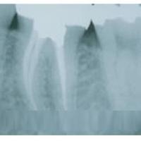 Quy trình nội nha – Chữa tuỷ răng