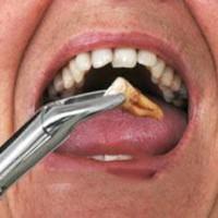 Nhổ răng hàm không đau