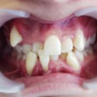 Các trường hợp cần nhổ răng
