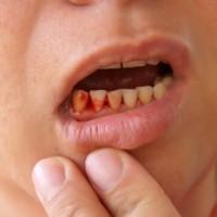 Thường xuyên bị chảy máu chân răng là do bệnh gì