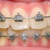 Những chú ý khi niềng răng