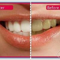 Tại sao cạo vôi răng bị ê răng và đau nướu? Tại sao nên cạo vôi răng định kỳ