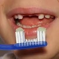 Bé bị sún răng – nên nhổ bỏ răng hay không