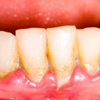 Mỗi lần lấy vôi răng em lại thấy không an toàn BS ạ