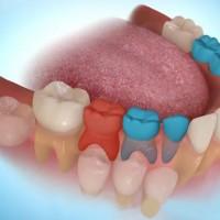 Đừng xem thường răng sữa