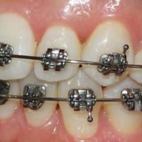Làm gì khi răng mọc chen chúc