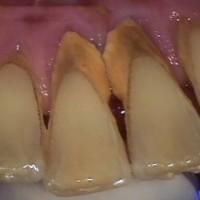 Cạo vôi răng và xử lý chân răng giúp răng và miệng của bạn sạch sẽ