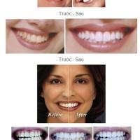 Răng sậm màu và các biện pháp cải thiện