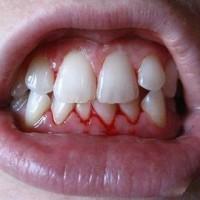 Điều trị chảy máu chân răng