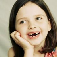 Tại sao trẻ cần được điều trị chỉnh hình răng mặt sớm
