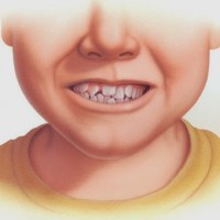 Niềng răng cho vấn đề răng mọc chen chúc