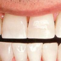 Bạn có biết cách cải thiện nụ cười của mình?