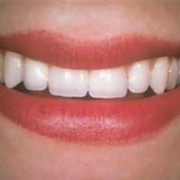 Những ai không nên cấy ghép răng implant