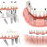 All on 4 và All on 6 cho mất răng toàn hàm