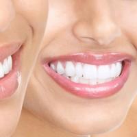 Cấy Implant tức thì sau nhổ răng
