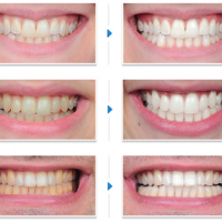 Điều trị răng sậm màu