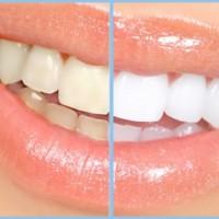 Bao nhiêu tuổi được tẩy trắng răng