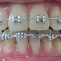 Niềng răng có tác dụng gì