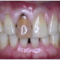 Nguyên nhân răng sậm màu